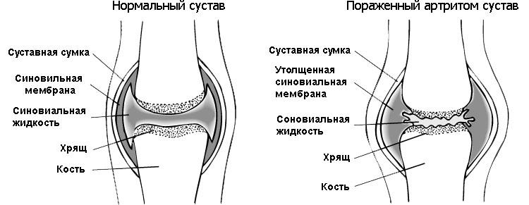 izmeneniya-sustava-pri-artrite