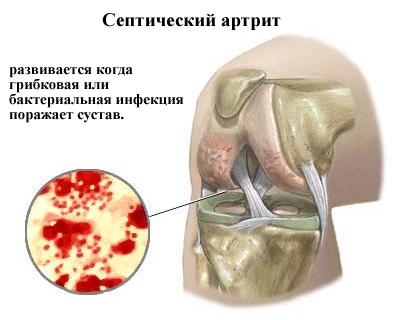 razvitie-septicheskogo-artrita