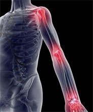 revmatoidnyiy-artrit