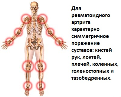 simtomyi-revmatoidnogo-artrita