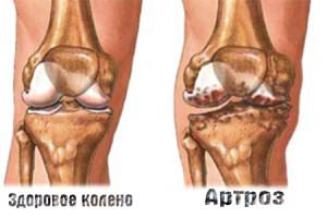 artroz-kolennogo-sustava