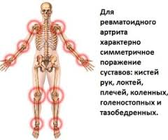 revmatoidnyiy-artrit-simptomyi