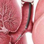 bronhoskopiya-lyogkih