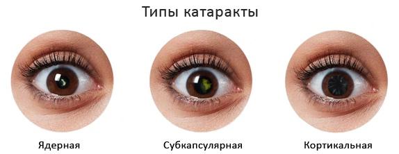 ipyi-kataraktyi