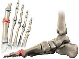 artrit-stopyi