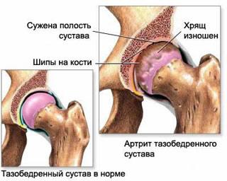 artrit-tazobedrennogo-sustava