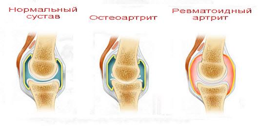 vospaleniya-v-sustavah-pri-artritah