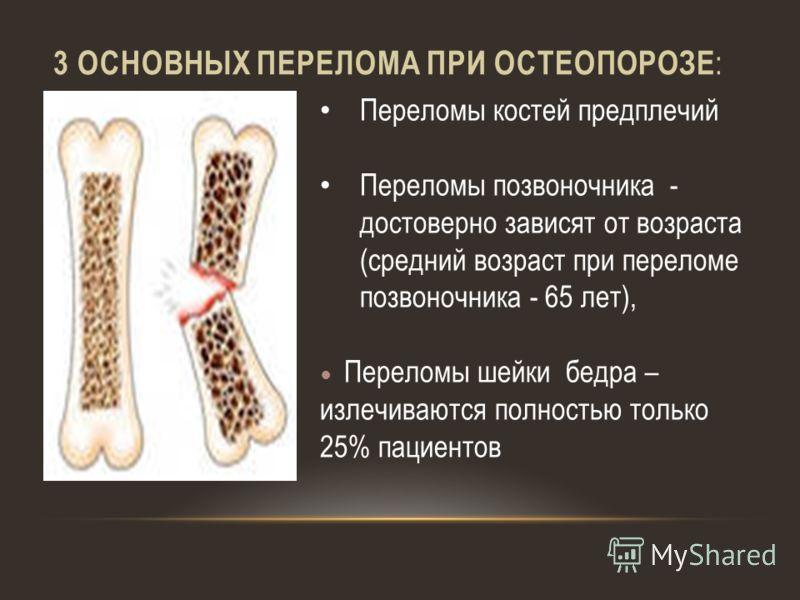 osnovnyie-perelomyi-pri-osteoporoze
