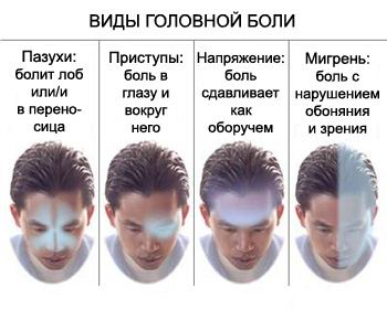 vidyi-golovnoy-boli