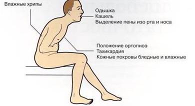 pervyie-priznaki-infarkta