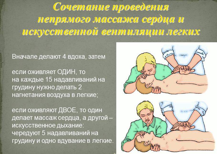 sochetanie-provedeniya-iskusstvennogo-dyihaniya-i-nepryamogo-massazha-serdtsa