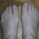 poteyut-nogi