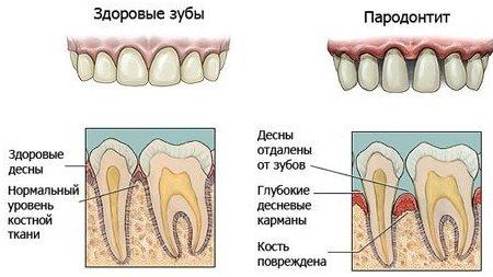 simptomyi-i-lechenie-paradontita