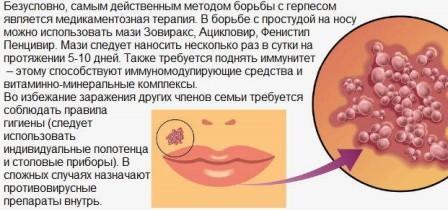 lechenie-gerpesa